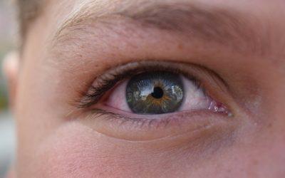 Conjuntivitis, protege la salud de tus ojos